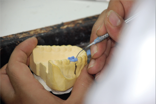 ecole de prothese dentaire